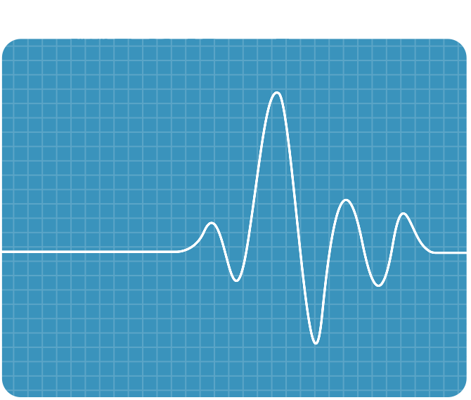 A Health Check Pulse Chart